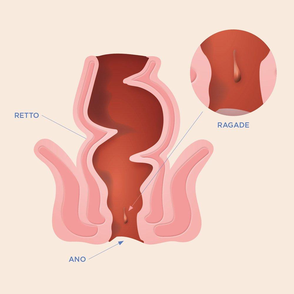 Illustrazione di intestino con Ragadi